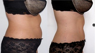 midsection2 b&a - laserlipo