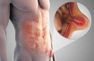 Pengobatan Alternatif Hernia