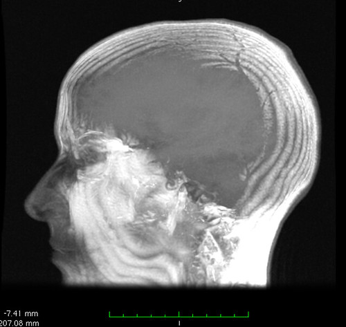 head-rendering from brain MRI