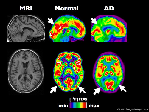 PET scan of an healthy brain compared to a brain at an early stage of Alzheimer's disease. | by Institut Douglas