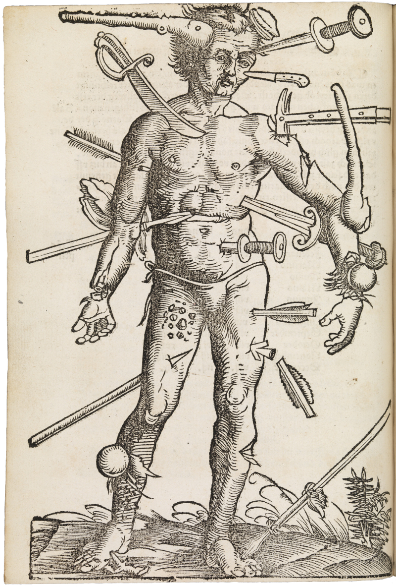 The Many Lives Of Medieval Wound Man Public Domain Review