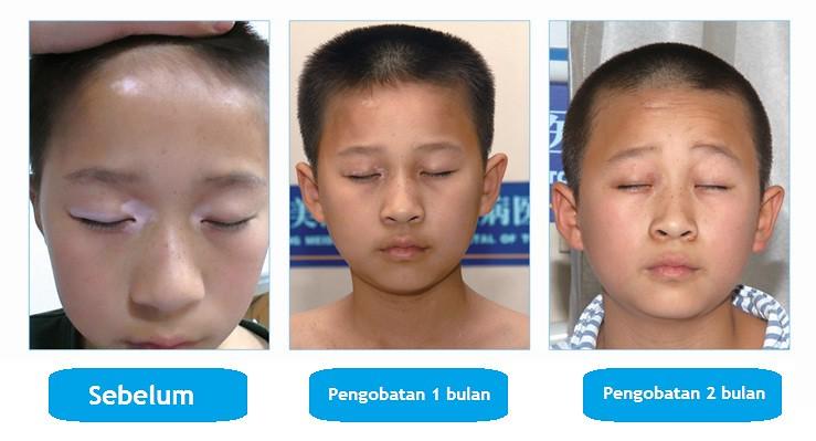 Cara Mencegah Penyebaran Vitiligo
