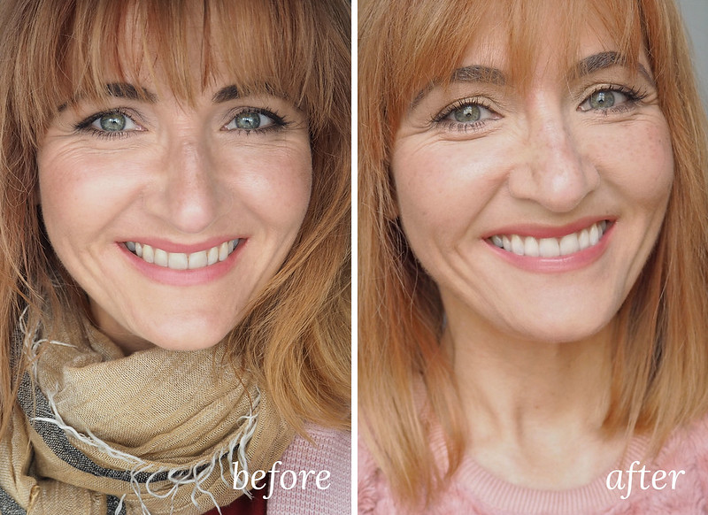 Before and after picture of Philips ZOOM! teeth whitening treatment - Read about the full process | Not Dressed As Lamb, over 40 style blog