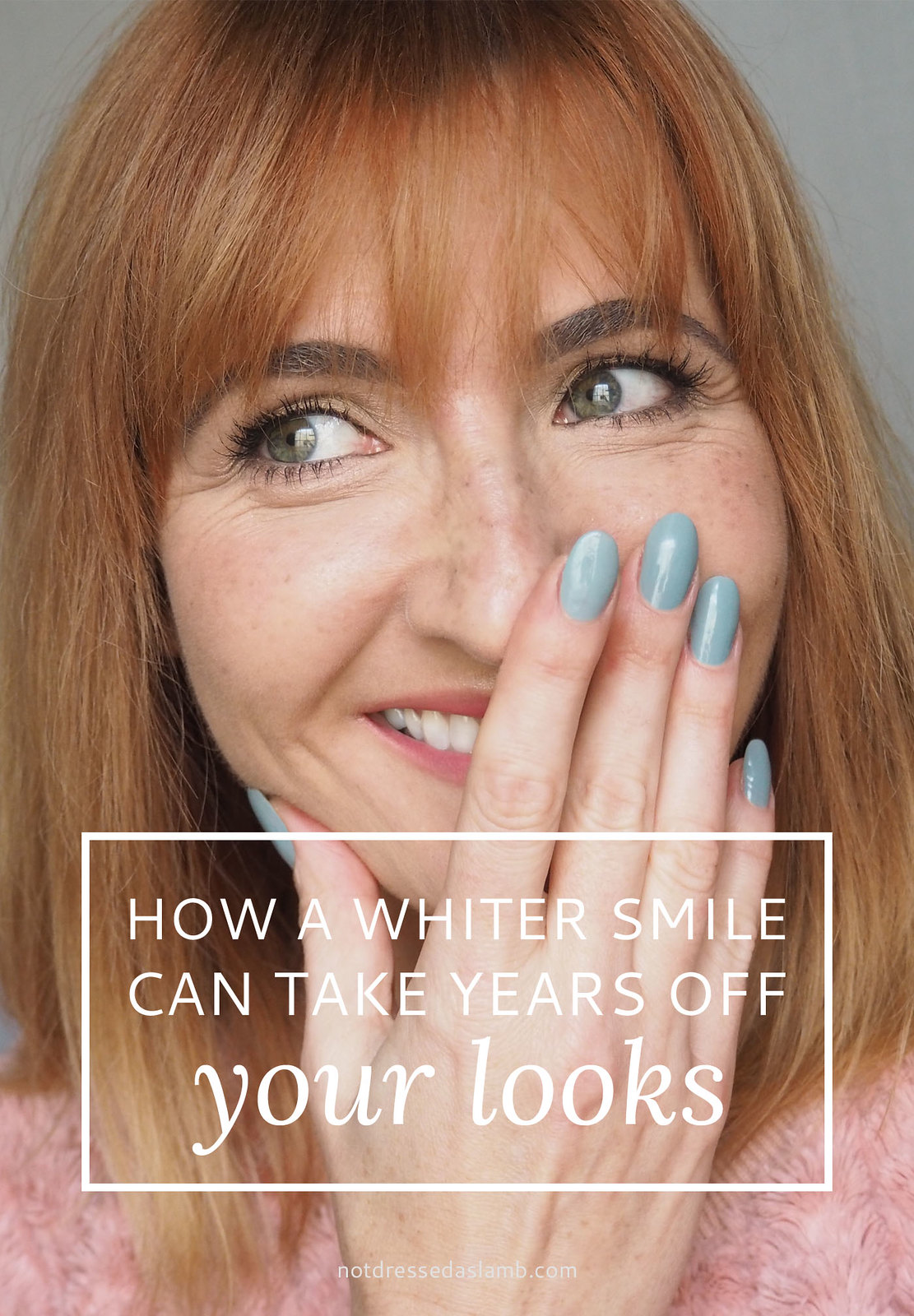 How a Whiter Smile Can Take Years Off Your Looks: | A review of Philips Zoom teeth whitening | Not Dressed As Lamb, over style blog
