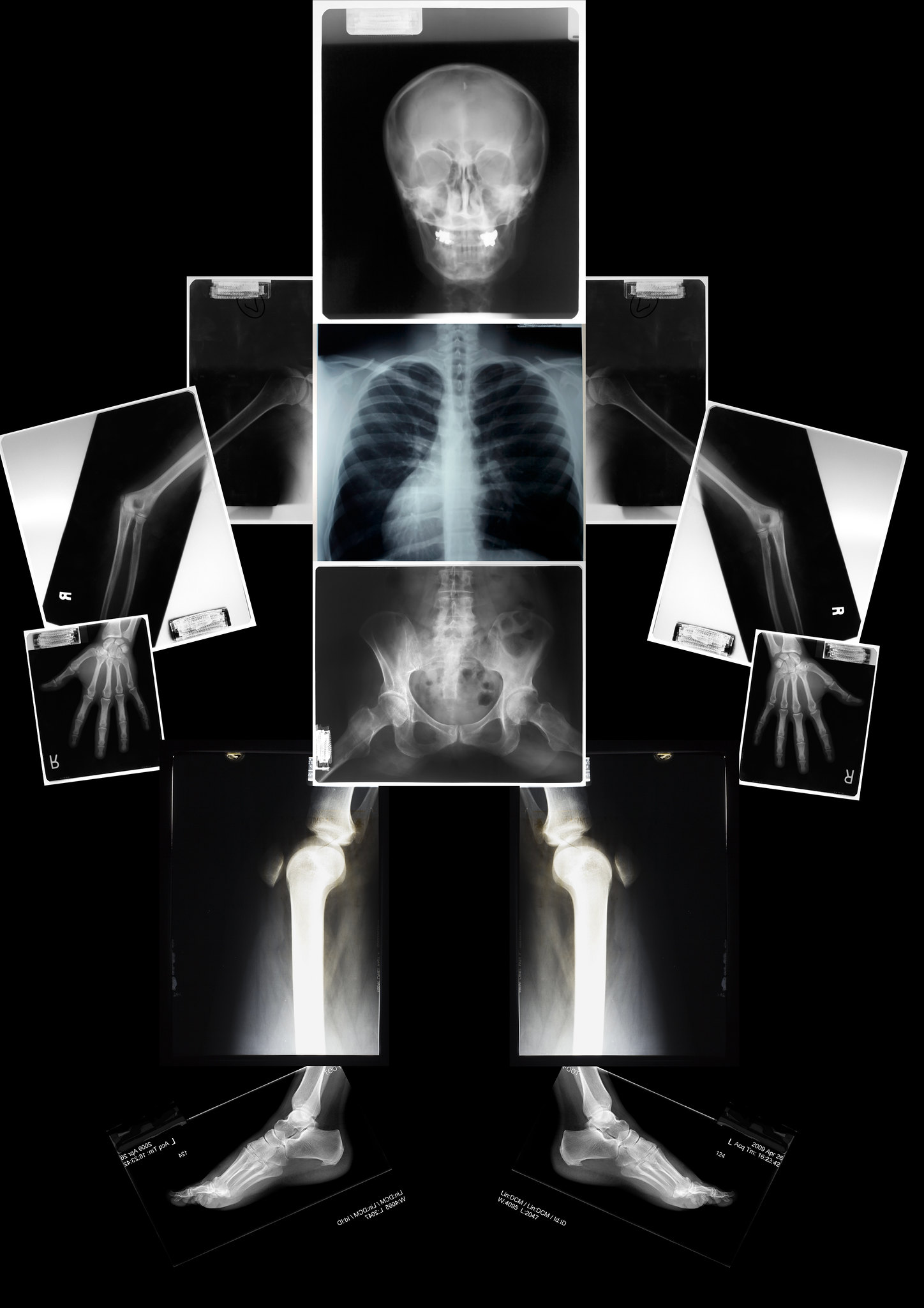 x-ray of a dwarf