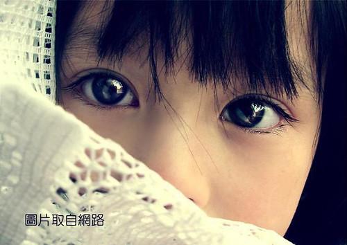 眼齡少5歲眼袋手術 (3 )