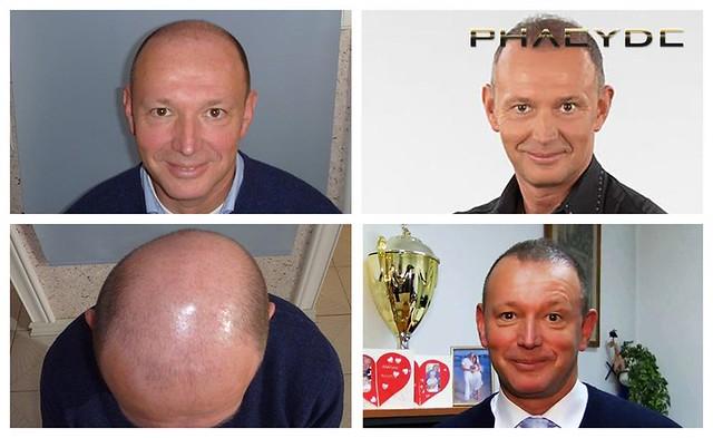 C'est le bon endroit pour obtenir réponses à vos questions concernant la transplantation de cheveux http://fr.phaeyde.com/greffe-de-cheveux