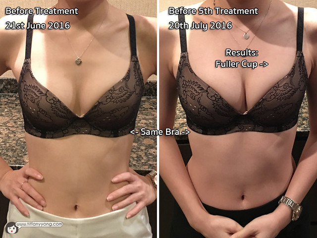 Slim Fit Singapore Bust Treatment Results