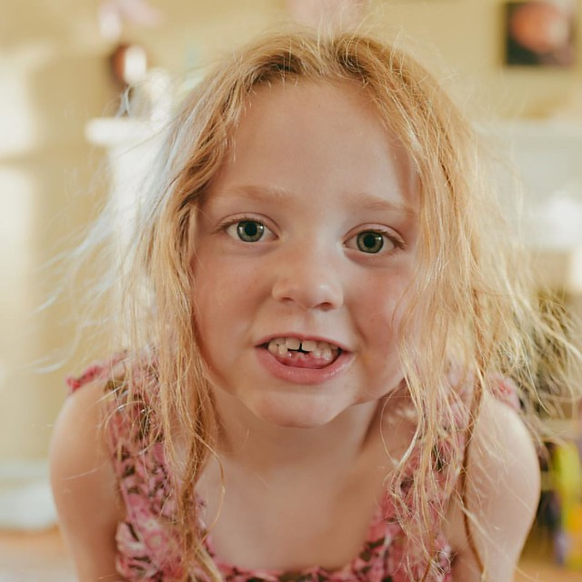 #100daysofsummer to losing her second tooth!