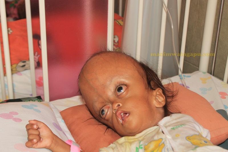 Bayi Santi di RSUD Umbu Rara Meha Sumba Timur