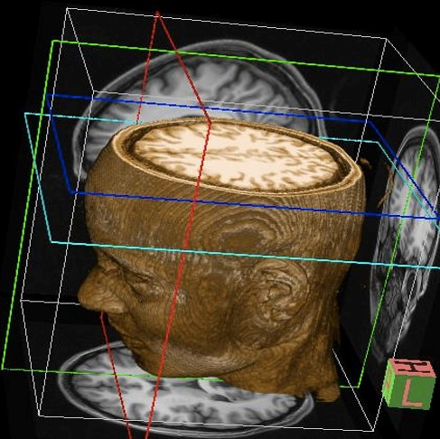 3d Radiology Center - Brain