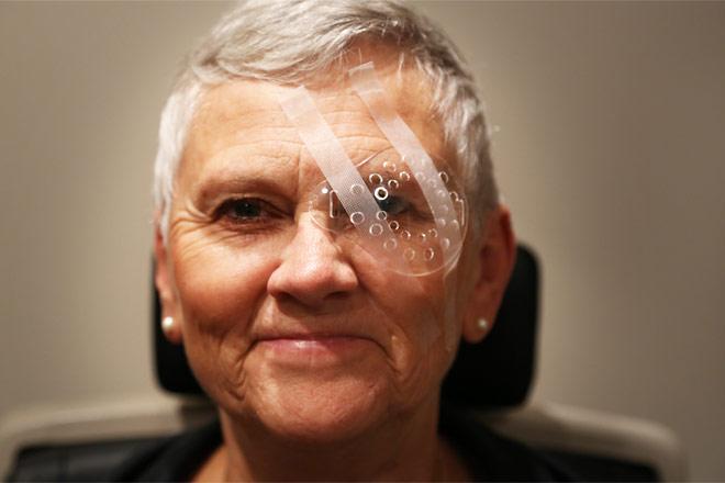 Pasca operasi katarak mata buram
