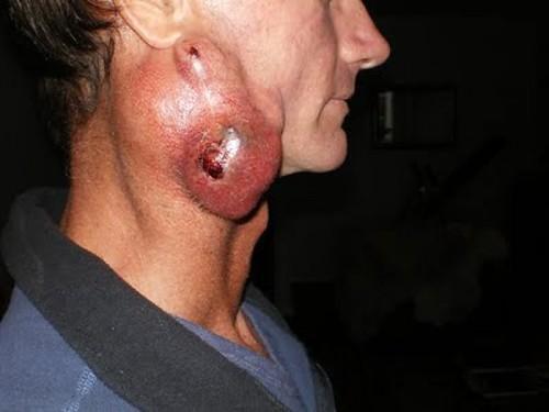 Cara mengobati tumor ganas di leher